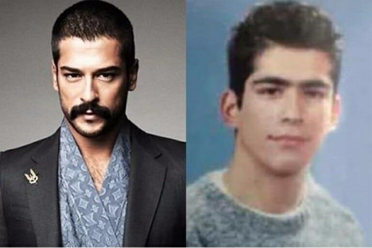 ünlü-önce-sonra